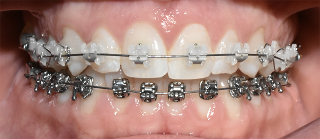 Close up of ceramic braces