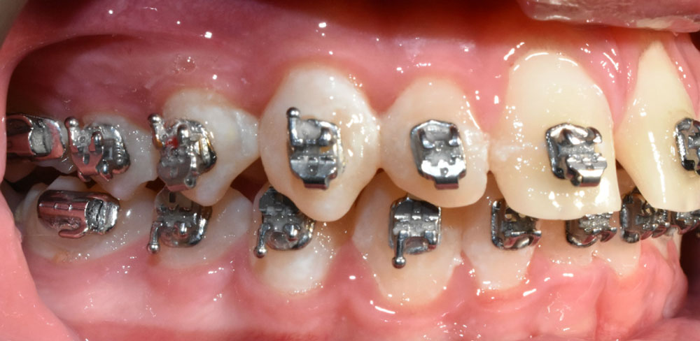 Poor oral hygiene has resulted in damage to the enamel on the teeth