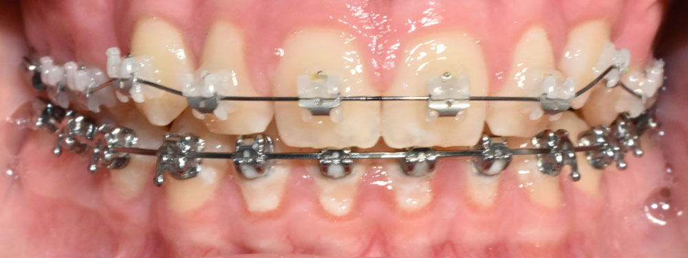 How fixed braces and oral hygiene