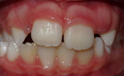 example of a crossbite