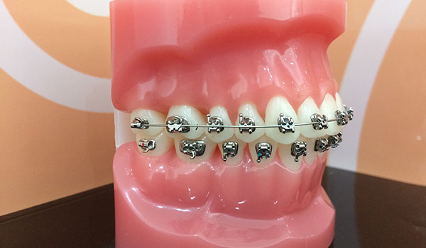 A model to show patients how their braces work