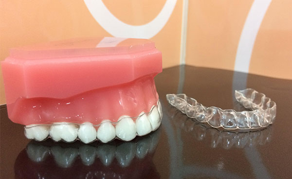 clear aligners are a popular choice
