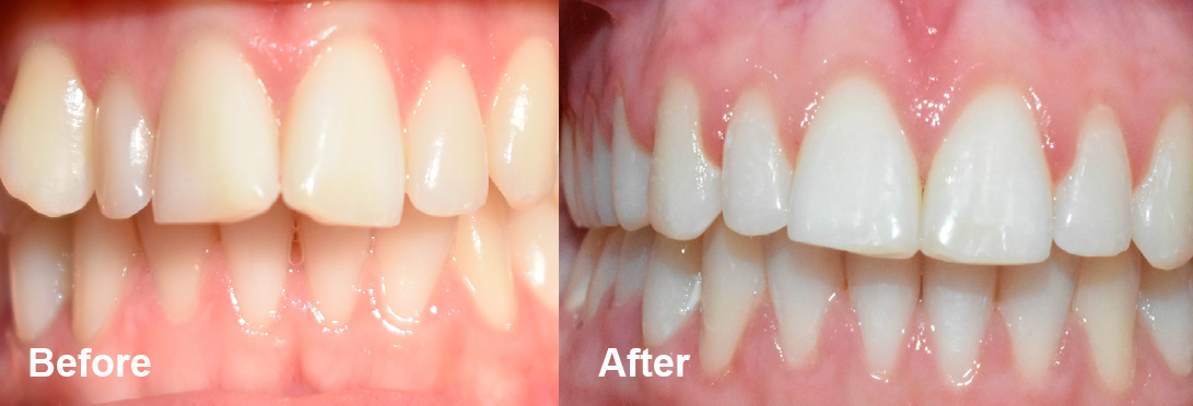 After shot of fixed upper teeth due to orthodontic treatment.