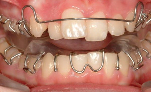 a wide range of orthodontics for teens