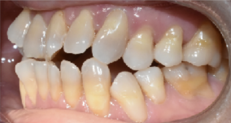Exposed roots causing discomfort and sensitivity.