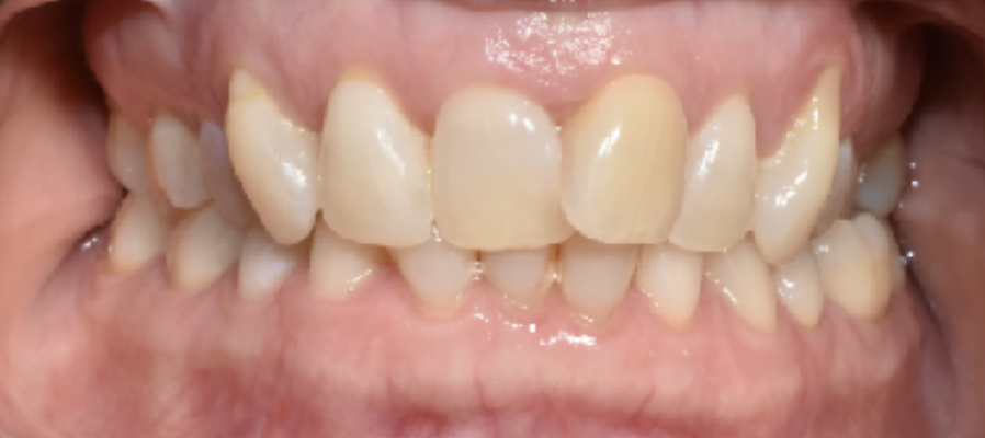 Stained teeth due to coffee intake and bad oral hygiene.