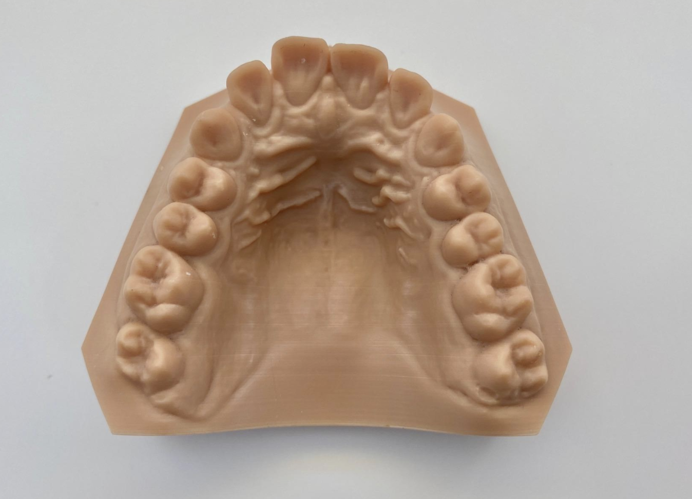 A mold of a mouth generated by 3D printing.
