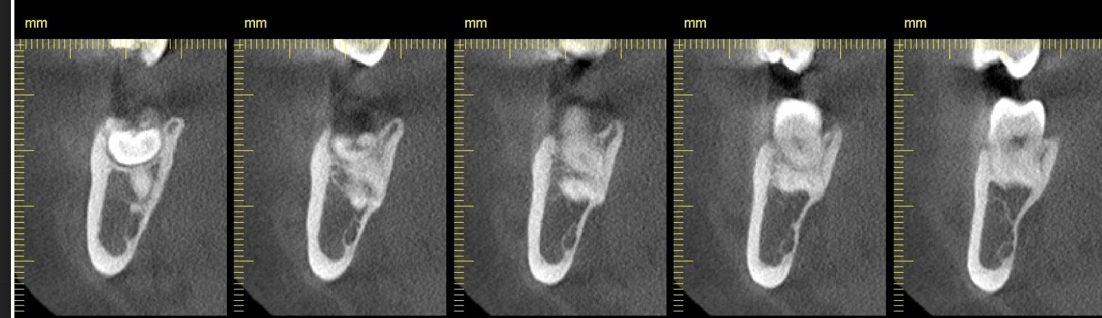 Individual wisdom teeth x-rays.