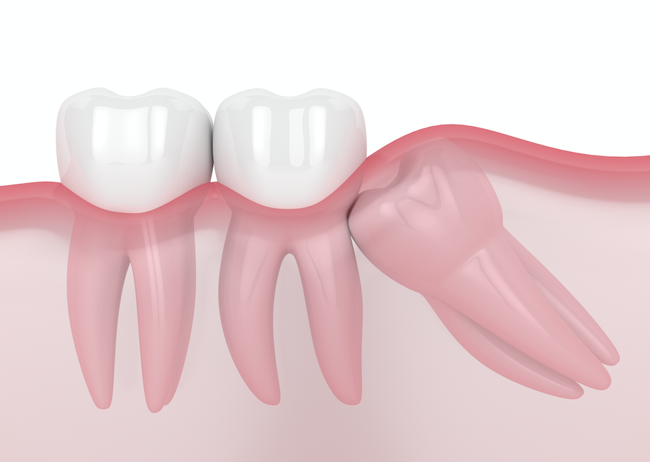 The formation of a cyst as the wisdom tooth pushes through.