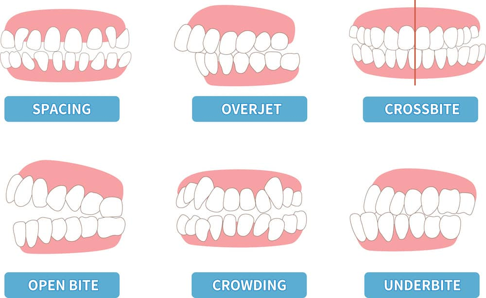 A diagram showing the most typical problems in children's teeth.