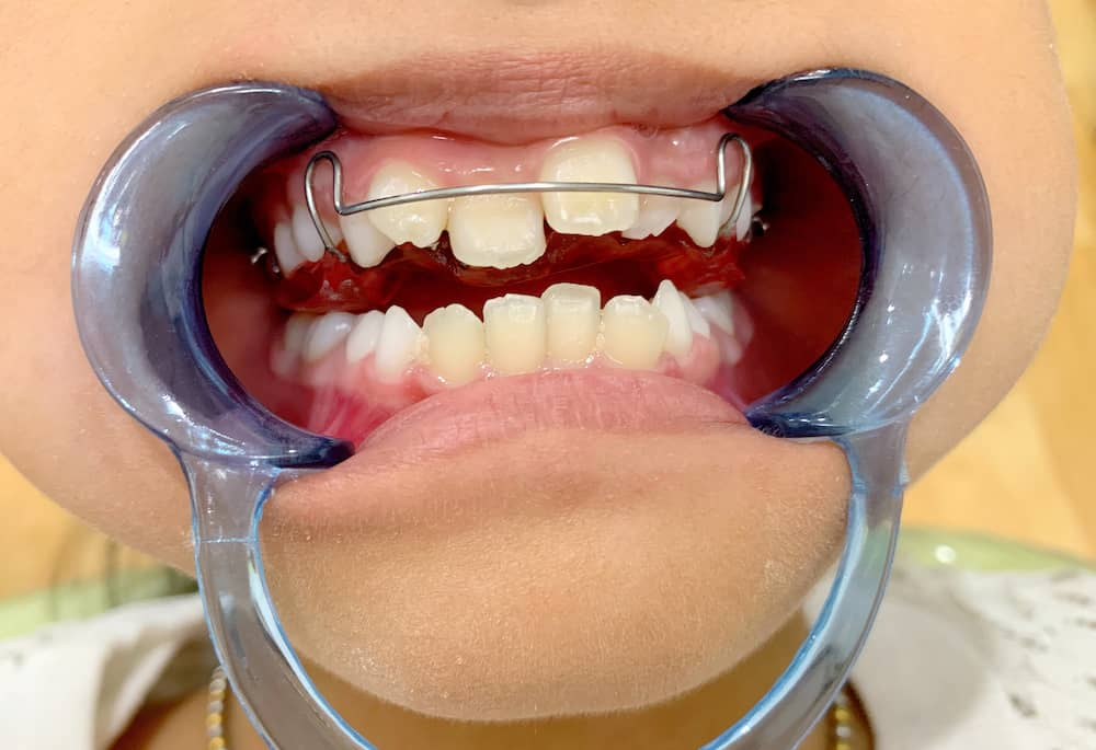 A kids mouth held open by plastic showing cross-bite.