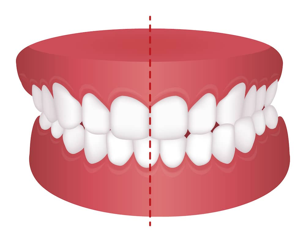 A teeth diagram showing the midline of teeth off centred to what it should be.