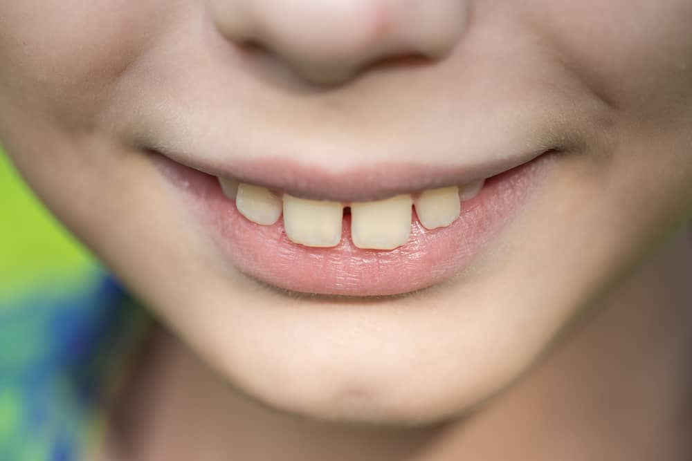 A young child's mouth showing obvious signs of overbite.
