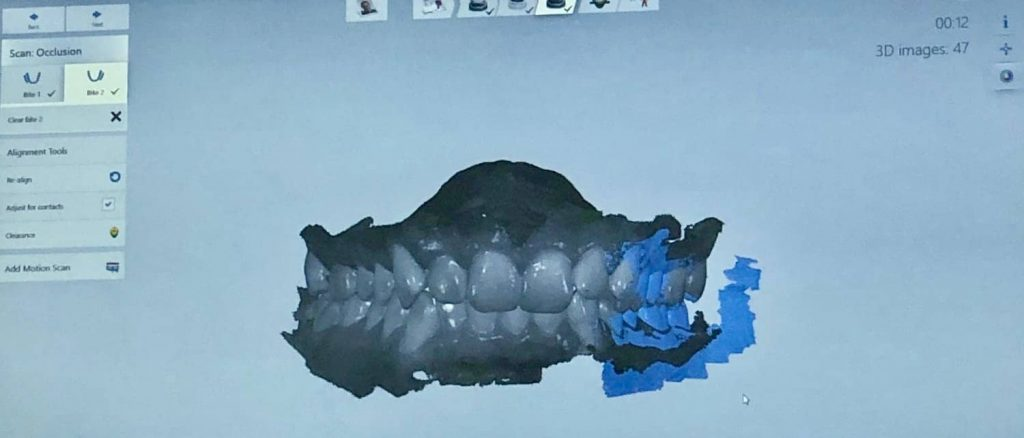 Trios Scanner images taken of Levi's mouth prior to getting braces and aligners.