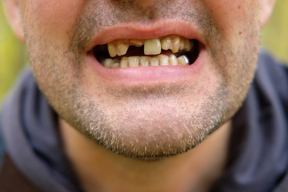 A mouth with crooked teeth and a front tooth missing.